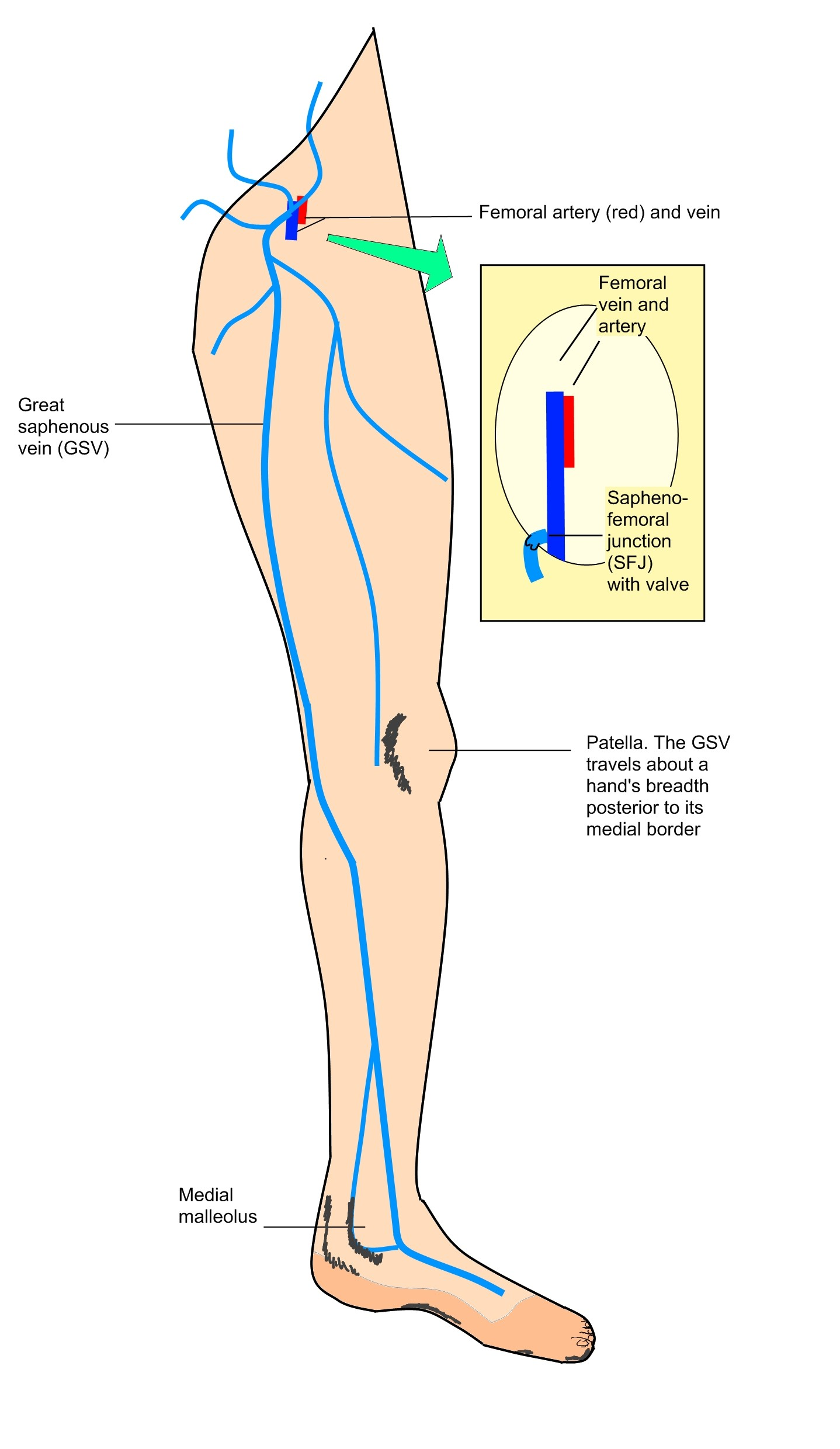 Examination Of Varicose Veins Clinipedia